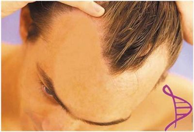 Loção Anti-Queda com Minoxidil 5%, Pilocarpina 0,5%, Capsicum 10% e D-Pantenol 1% - 100ml. Modo de usar: Aplicar no couro cabeludo 2 a 3 vezes ao dia, com massagem suave.
