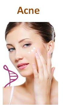 Tratamento da Acne Vulgar - Gel creme com Azeloglicina 5% - 30g. Posologia: Aplicação tópica diária, 2 vezes ao dia.