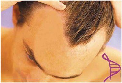 Loção Capilar Anti-queda com Minoxidil 5% - 100ml. Modo de usar: Aplicar no couro cabeludo 2 a 3 vezes ao dia, com massagem suave.