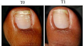 Nano Repair - Fortalece e Hidrata as Unhas - 10g